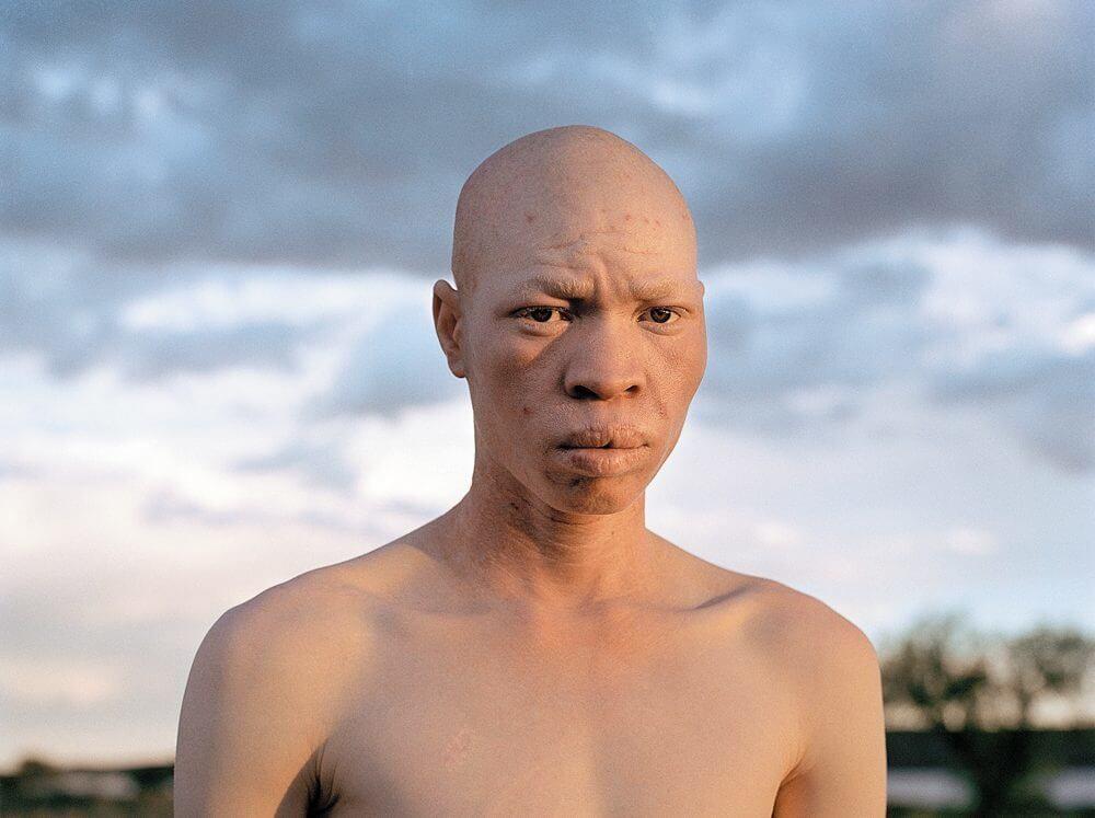 Негр-альбинос